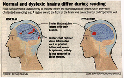 Dyslexia and the Brain – International Dyslexia Association